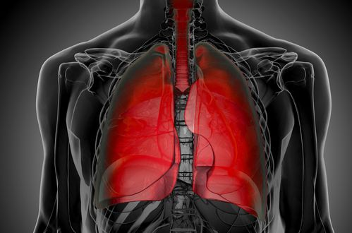 Asbestos Fibers In Lungs : Asbestos lung cancer youtube
