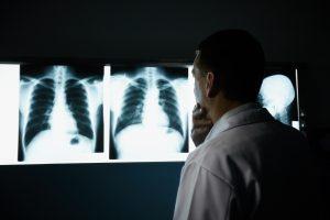 Enfermedades relacionadas con el asbesto